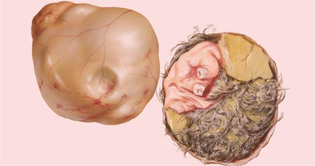 Дермоидная киста, тератома яичника: симптомы, признаки при беременности, лечение