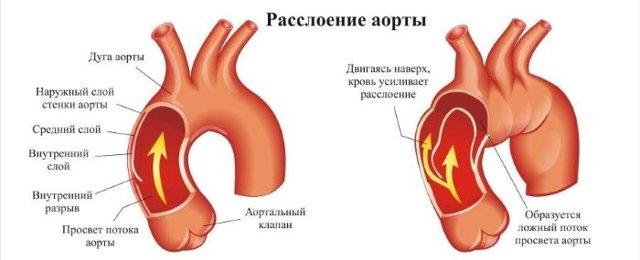 Аортит: что это такое, причины, симптомы, лечение, профилактика
