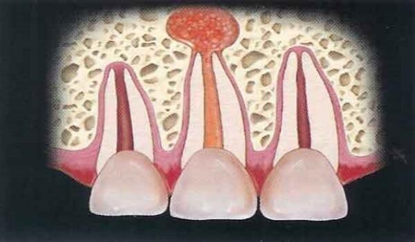 Киста зуба: симптомы, что это такое, как лечить в домашних условиях