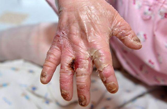Буллезный эпидермолиз или болезнь бабочки: что это, фото, лечение, продолжительность жизни