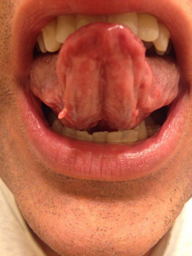 Папиллома во рту: причины, симптомы, лечение папилломатоза на языке, щеках, небе