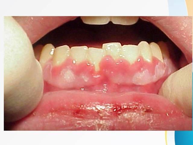 Герпетический стоматит: симптомы у детей и взрослых, лечение