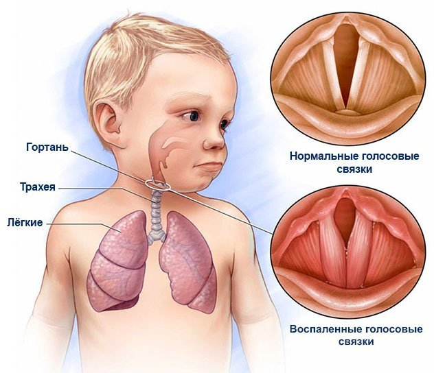 Ларингомаляция у детей, новорожденных: что это, симптомы и лечение