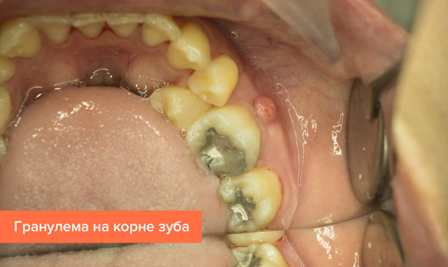 Гранулема зуба: что это за заболевание и как ее вылечить в домашних условиях