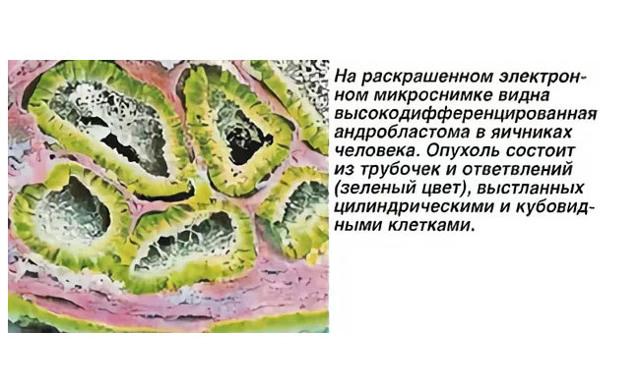 Андробластома яичника доброкачественная, злокачественная: лечение, клинические рекомендации