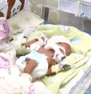 Врожденная цитомегаловирусная инфекция у новорожденных: признаки цитомегалии