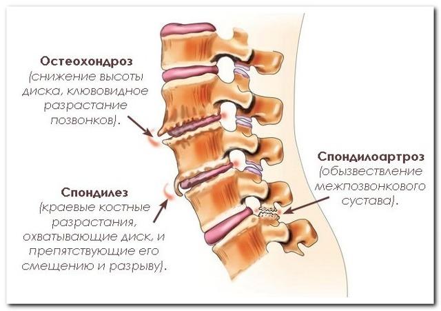 Поясничный спондилез: что это такое, причины, симптомы, лечение