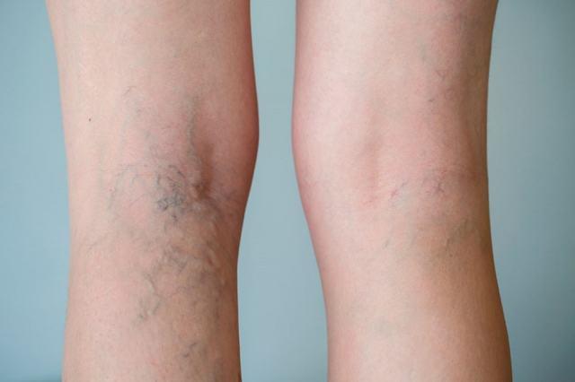 Сосудистые «звездочки» на ногах: удаление, лечение, причины появления телеангиэктазии