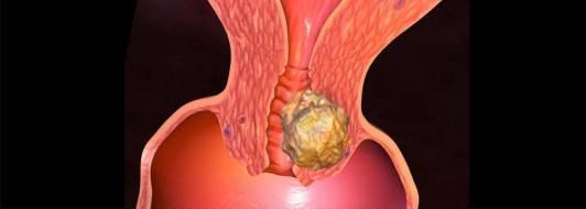Рак шейки матки: стадии, симптомы, причины, диагностика, лечение рака шейки матки.