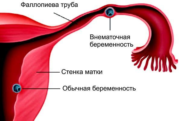 Кровотечение во второй половине беременности: причины, методы лечения, прогноз при кровотечении на позднем сроке беременности