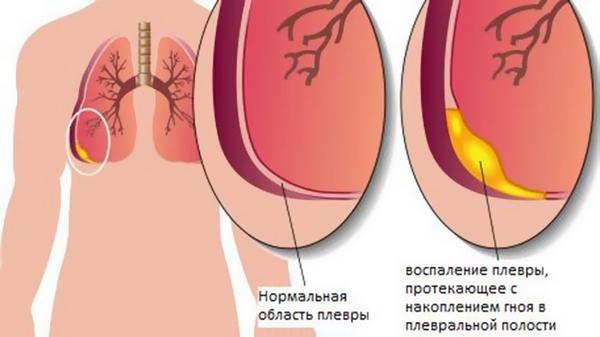 На что указывает боль в левом и правом подреберье?
