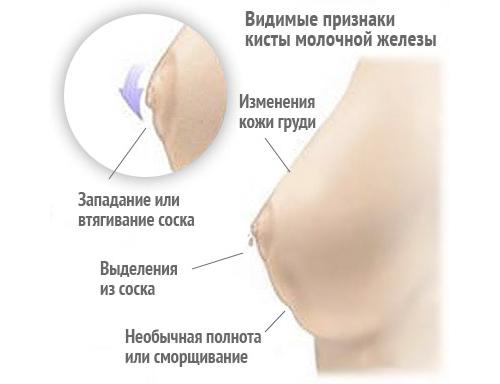 УЗИ молочных желез – на какой день цикла делают, что показывает, подготовка