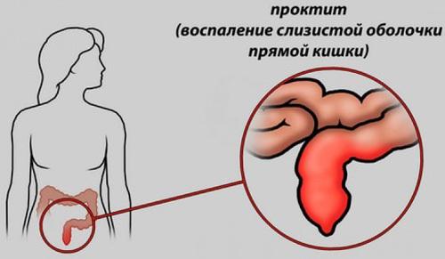 Симптомы и лечение проктита, методы диагностики и профилактики.