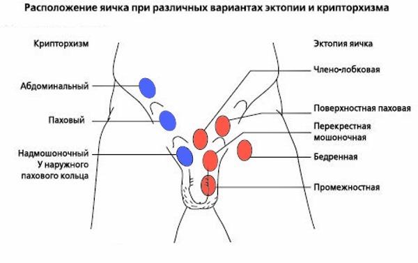 Крипторхизм: симптомы, причины, диагностика, лечение крипторхизма у детей, операция при крипторхизме, профилактика заболевания