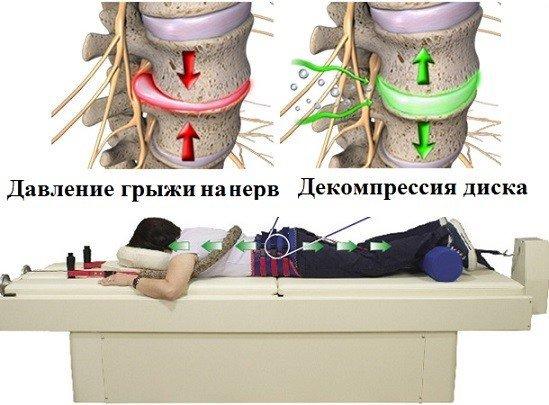 Грыжи межпозвоночных дисков — симптомы, виды межпозвоночных грыж, лечение и удаление межпозвоночных грыж