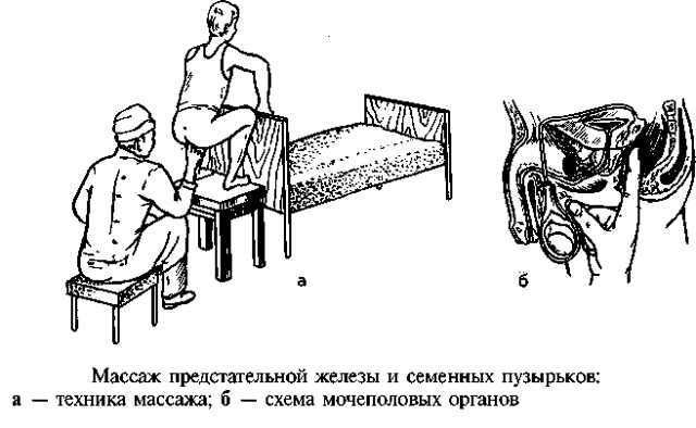 Массаж простаты: как делается, техника проведения, массаж простаты пальцем