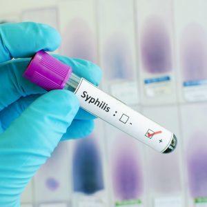Анализы крови на сифилис: РИФ, ИФА, РВ, РИБТ, РПГА тест, ПЦР, расшифровка