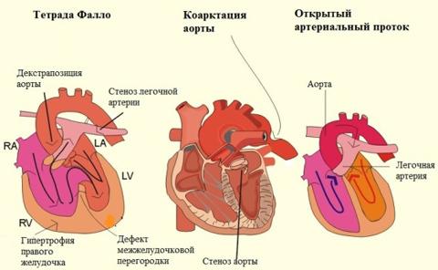 Врожденные пороки сердца и причины их возникновения, систематизация, жалобы и диагностика, лечение и профилактика